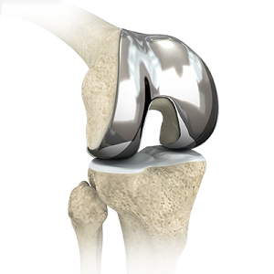 Custom-fitted Total Knee Arthroplasty